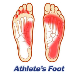 Athlete's Foot Diagram