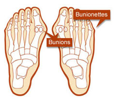 Bunions and bunionettes diagram