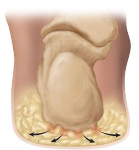 natural fat pad of the heel