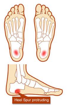 heel bone spur