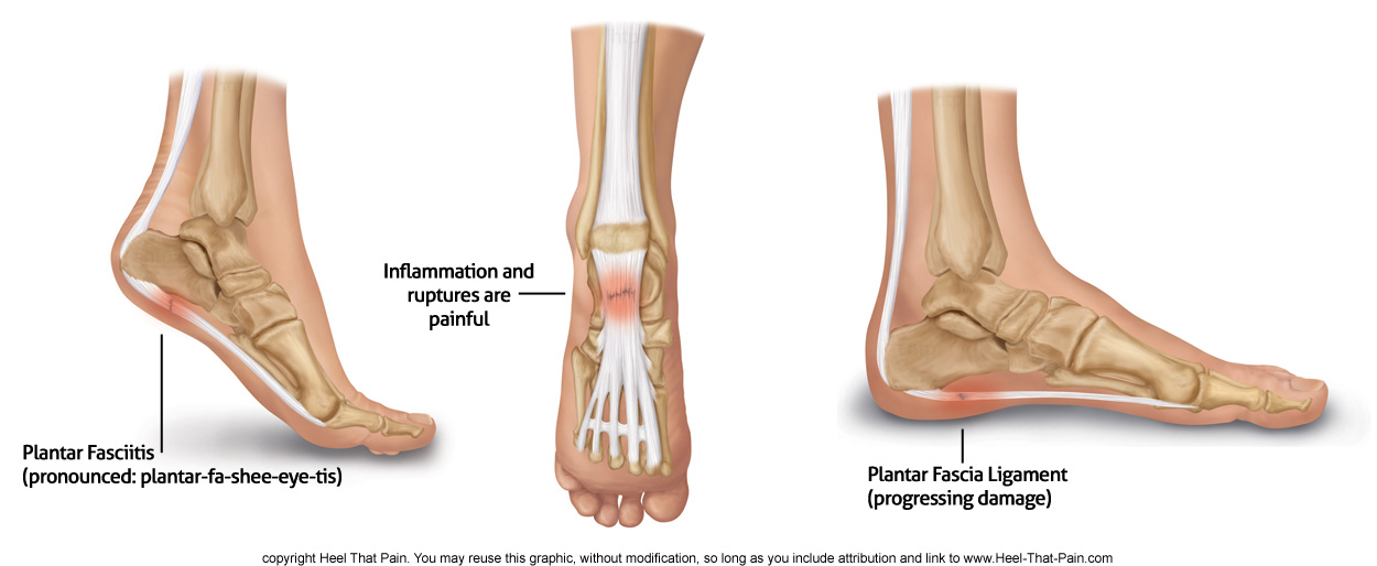 Plantar Fascia Ligament Pain Conditions Heel That Pain