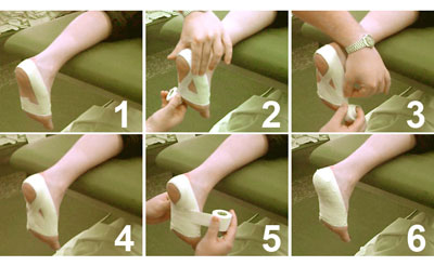 Plantar Fasciitis Foot Taping Technique Diagram