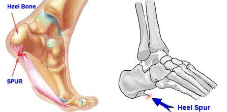 heel bone spurs